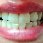 visita dentistica gratuita (foto M. Cuomo - www.nonsolorisparmio.it)